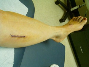 2-week post-op Proximal Tibial Nerve Decompression incision