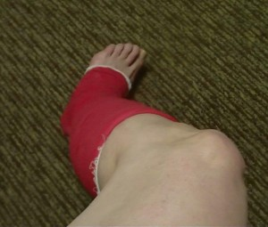 Coban wrapped entire leg support for Proximal & Distal Fibula pain