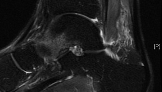 3T MRI Left Ankle Sag T2 Series 8 Image 17