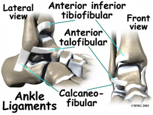 Anterior Inferior Tibiofibular Ligament