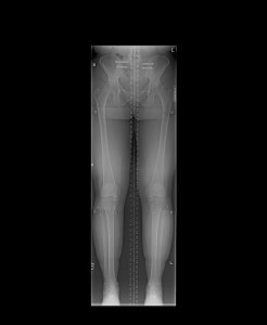 10-28-14 Limb length x-ray study