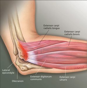 Lateral Epicondyle tendons