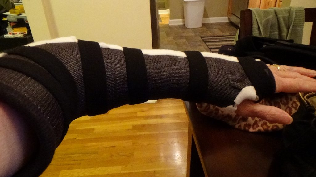 Torn ulnar collateral ligament elbow. Latest Issue