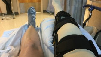 Medial Meniscus Repair Surgery of My Right Knee
